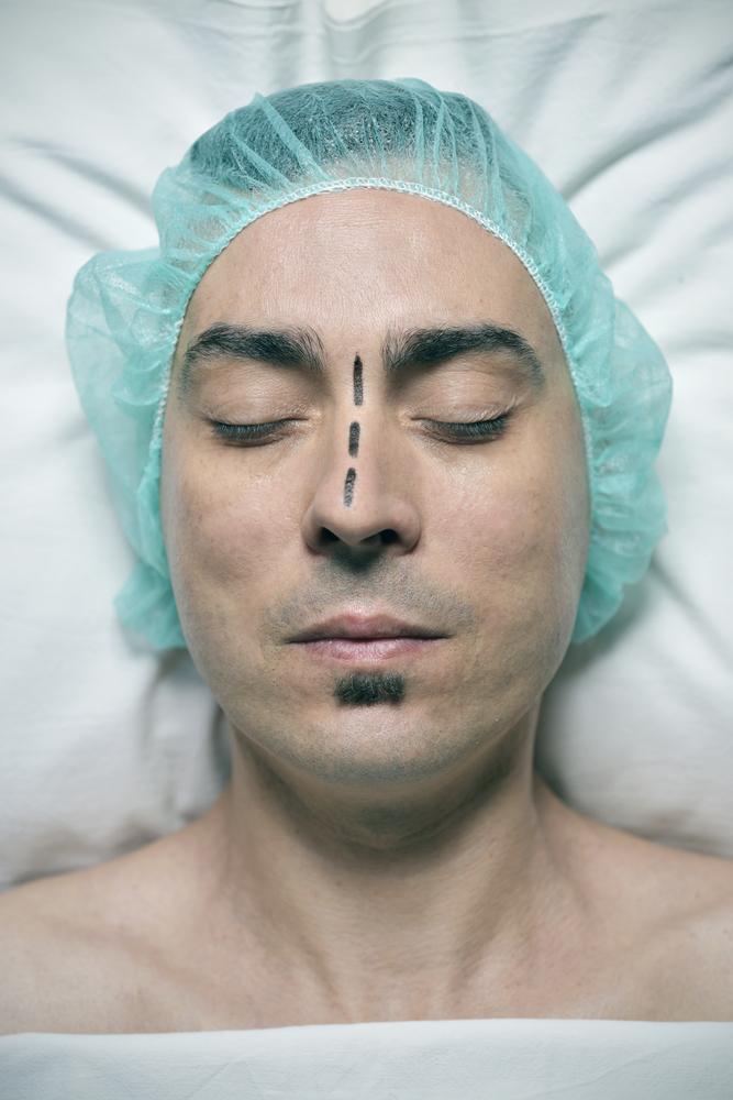 ניתוח אף לגברים