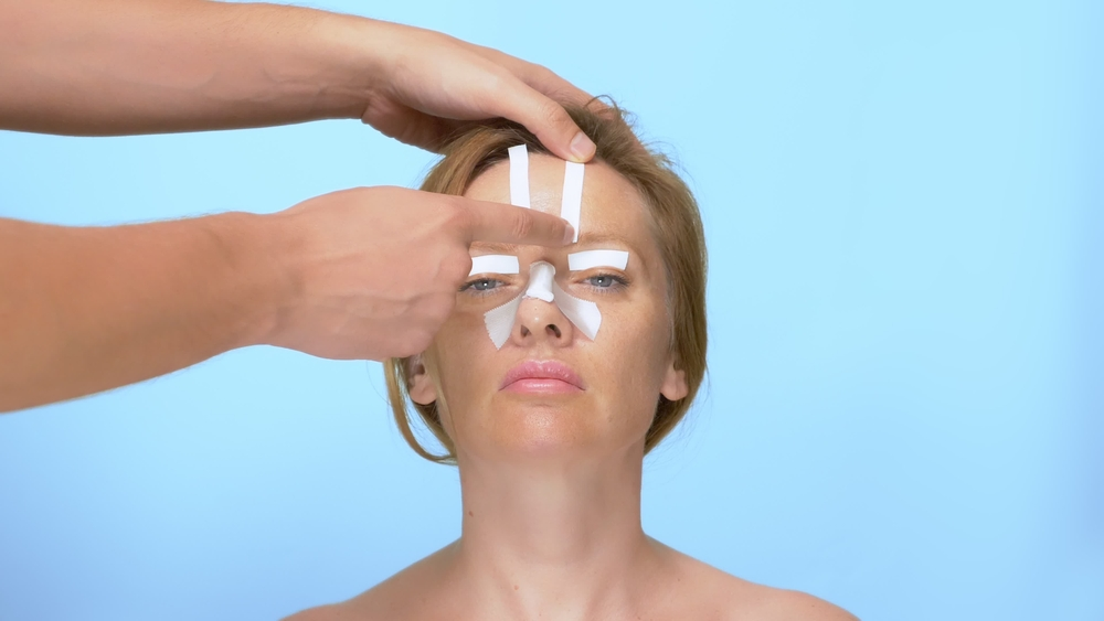ניתוח מחיצת האף