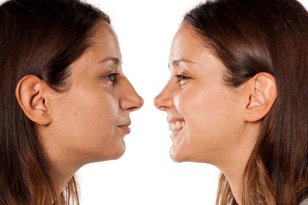 לפני ואחרי ניתוח אף